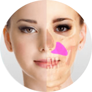 Facial Implant Surgery in Bangalore