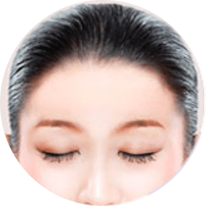 Forehead Reduction Surgery  in Bangalore - Anew Daycare