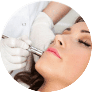 Laser Treatment For Pimples And Acne