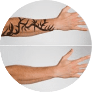 Laser Tattoo Removal in Bangalore