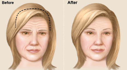 Brow Llift Surgery in Banashankari Bangalore