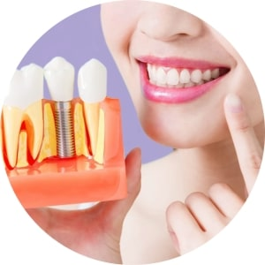 Dental Implants in Maldives