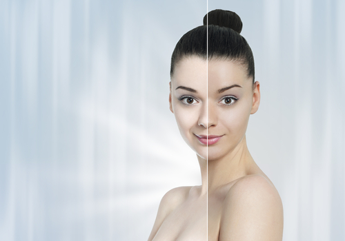 Laser Treatment for Skin Whitening, Age Spots & Sun Tan