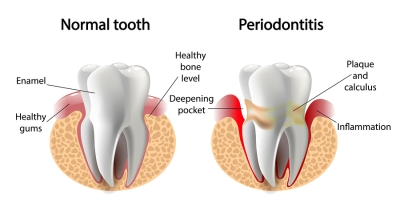 Best Periodontist in Bangalore